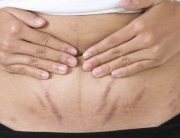 stria-kezeles-termeszetes-anyag-terhessegi -csik-kozmetikai